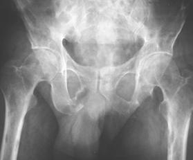 Oncology - Orthopaedics SA